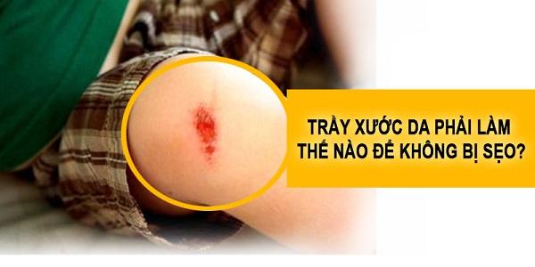 Trầy xước da phải làm thế nào để không bị sẹo?